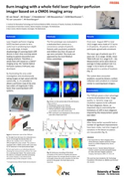poster: BURN IMAGING WITH A WHOLE FIELD LASER DOPPLER PERFUSION IMAGER BASED ON A CMOS IMAGING ARRAY