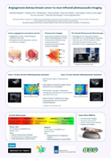 poster: ANGIOGENESIS BETRAYS BREAST CANCER TO NEAR-INFRARED PHOTOACOUSTIC IMAGING