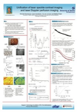 Poster: UNIFICATION OF LASER SPECKLE CONTRAST IMAGING AND LASER DOPPLER PERFUSION IMAGING