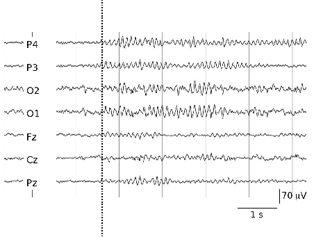 Part of an EEG